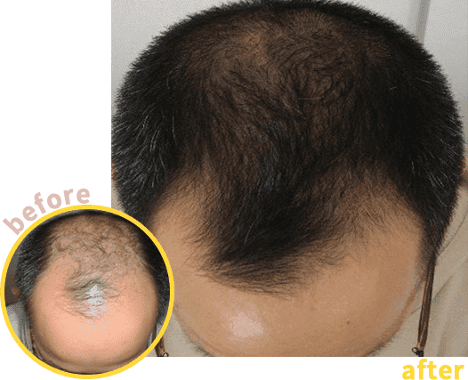 男性発毛実績