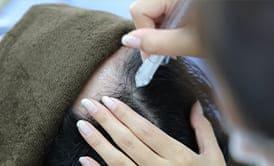 頭皮の血管を拡張し血行を促進