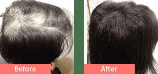 30代女性発毛症例