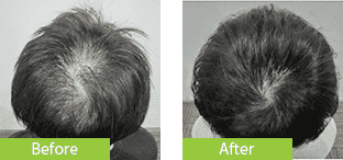 40代男性発毛症例