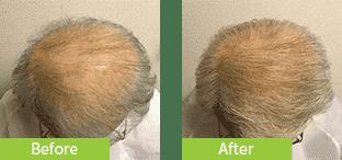 60代男性発毛症例
