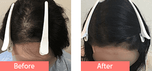 50代女性発毛症例