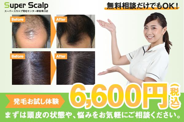 発毛お試し体験6,600円(税込)
