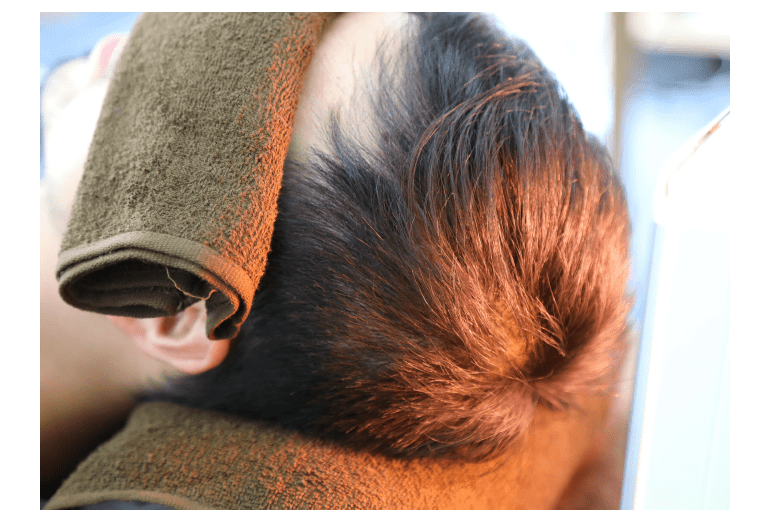 髪の発毛サイクルを整えて髪の成長期を長くする!
