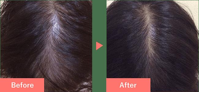 26歳女性の発毛実績 4ヶ月で発毛