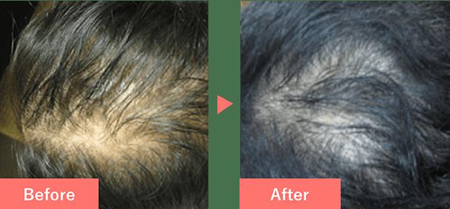 40歳女性の発毛実績 6ヶ月で発毛