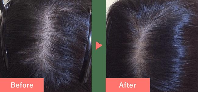 32歳女性の発毛実績 8ヶ月で発毛