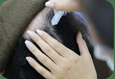 頭皮洗浄「角栓マイクロジェットピーリング」