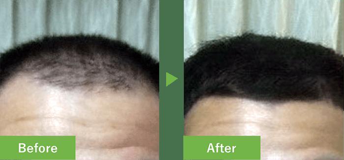 28歳男性の発毛実績 2ヶ月で発毛