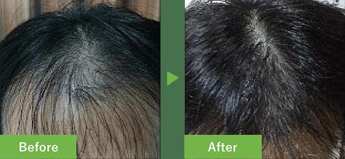 46歳男性の発毛実績 3ヶ月で発毛