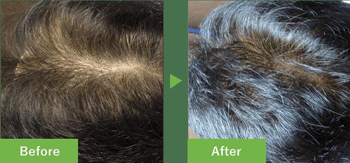 46歳男性の発毛実績 6ヶ月で発毛
