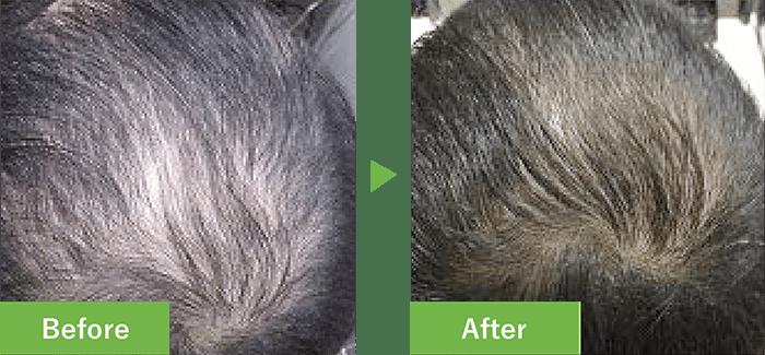 38歳男性の発毛実績 4ヶ月で発毛