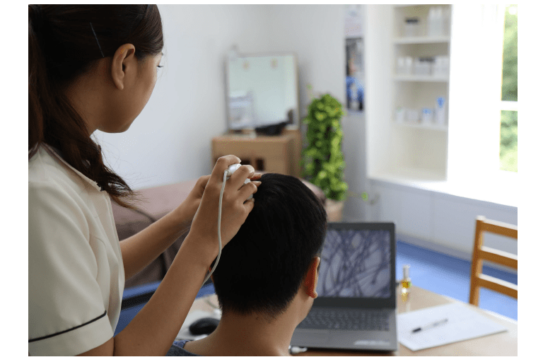 当社製品と施術で遺伝的な薄毛を解決!