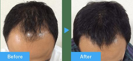 30代男性の発毛実績