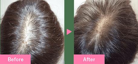 20代女性の発毛実績