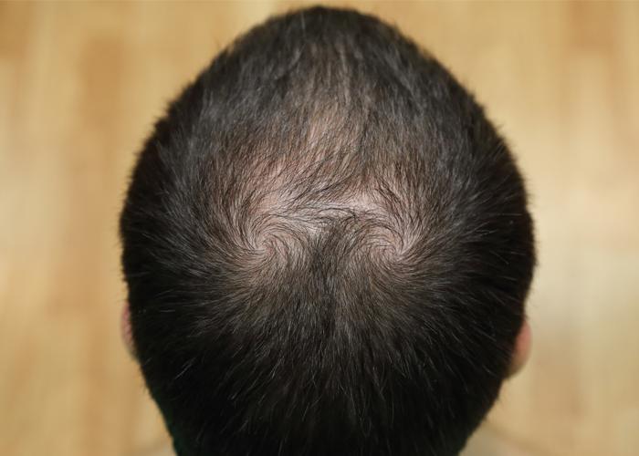 湿疹 頭皮