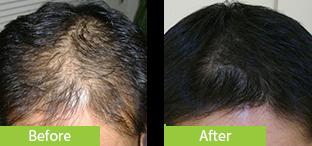 30代男性発毛症例