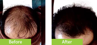 50代男性発毛症例