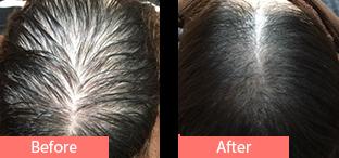 40代女性発毛症例