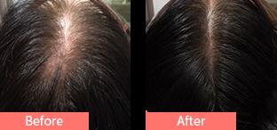60代女性発毛症例