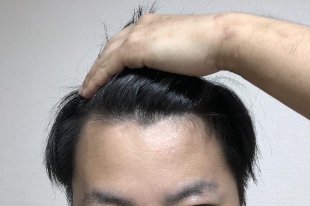 基準 はげ AGA・ハゲの判断基準とは?【薄毛の見分け方】|りょーすけ先生【薄毛・ハゲ・AGA治療院】髪ワザchannel|note